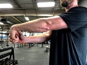 elbow pain relief, eliminate elbow pain while lifting, treat elbow pain, elbow stretching