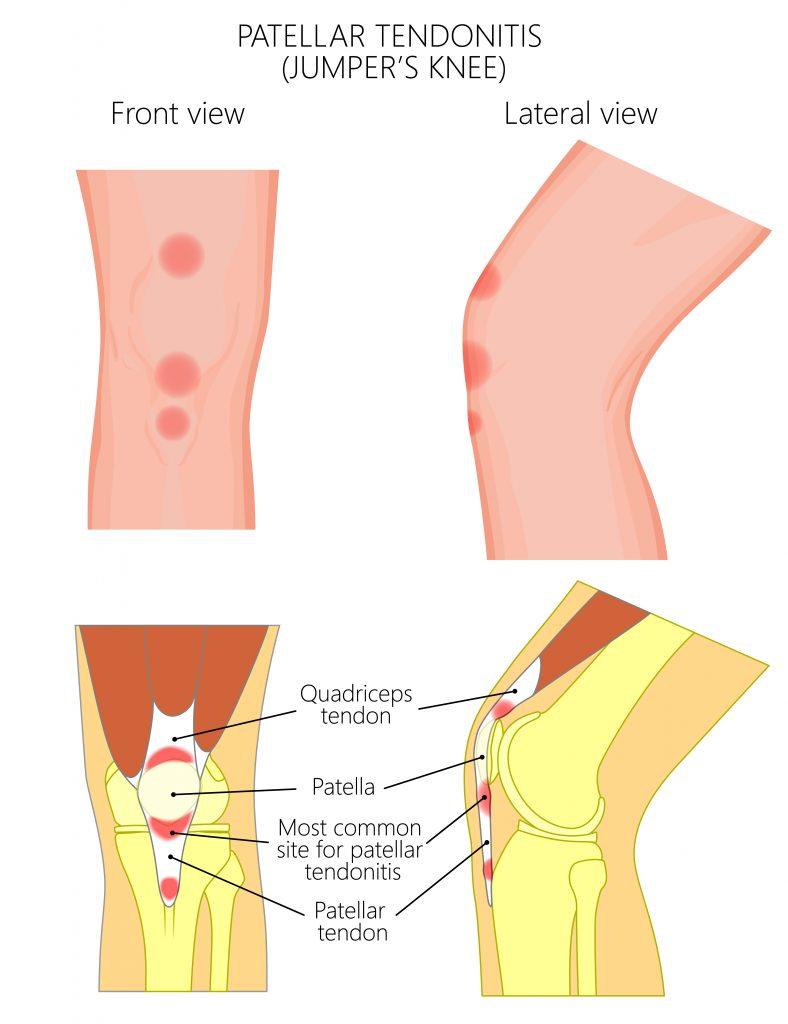 what is tendonitis, quad tendinitis, patellar tendinitis