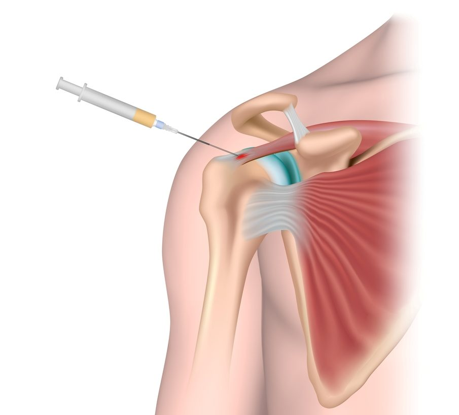 PRP, PRP injection, PRP Therapy, PRP For Cuff Tendonitis