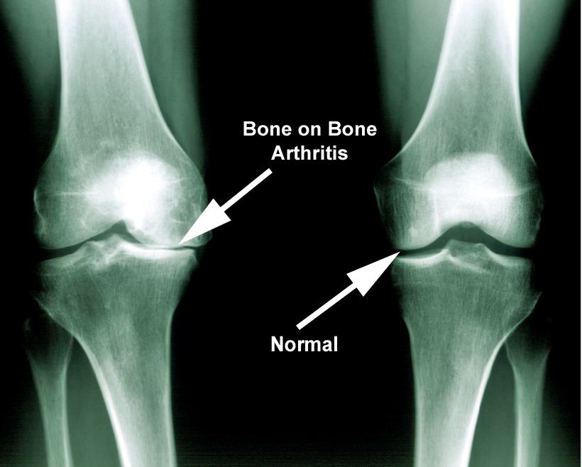 what is knee arthritis
