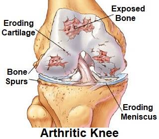 what is arthritis, knee arthritis