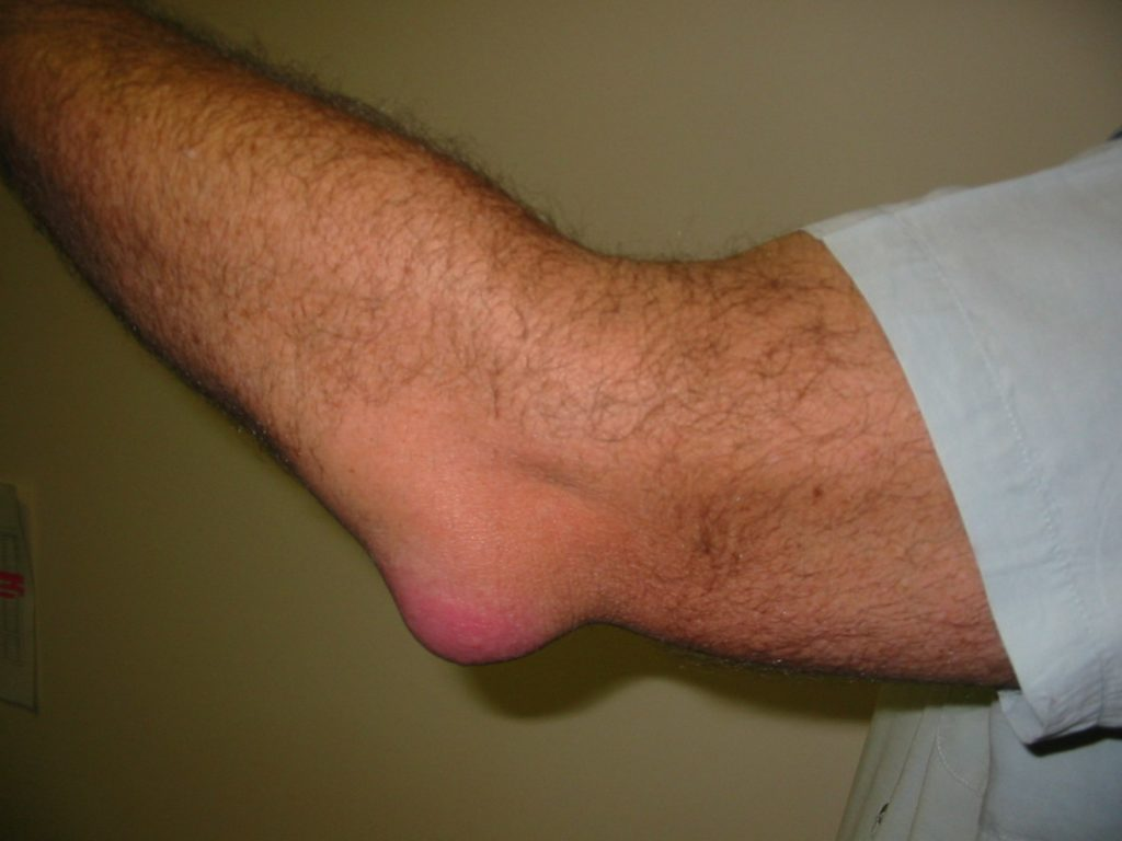 elbow pain from weight lifting, elbow pain while lifting, olecranon bursitis, elbow swelling